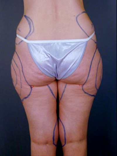 Thighs Gallery - Patient 13900670 - Image 1
