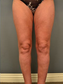 Thighs Gallery - Patient 13900669 - Image 2