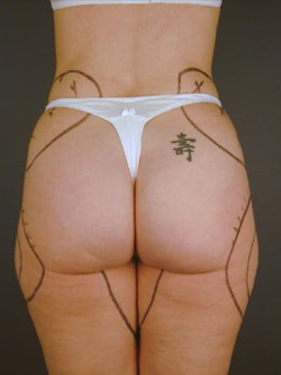 Thighs Gallery - Patient 13900672 - Image 4
