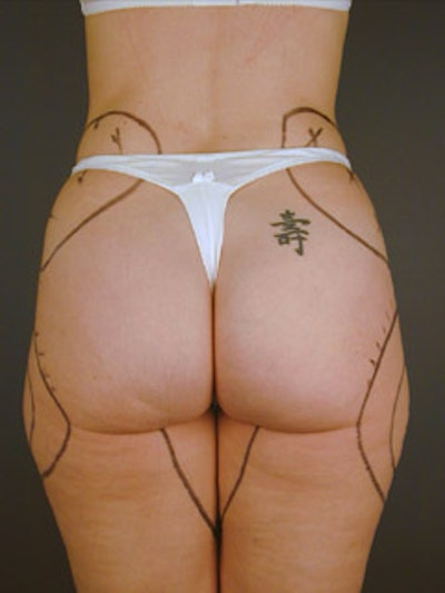 Thighs Gallery - Patient 13900672 - Image 1