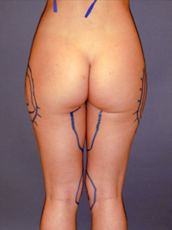 Thighs Gallery - Patient 13900673 - Image 1