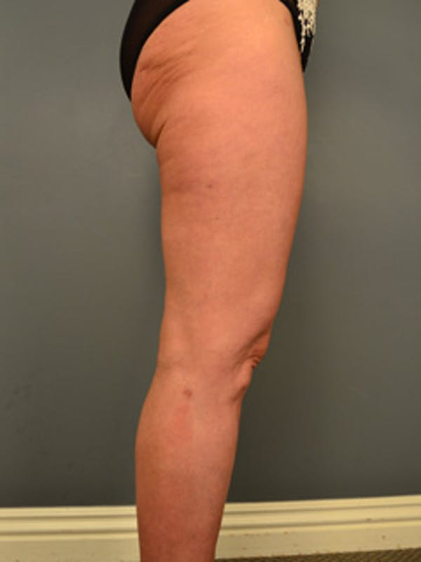 Thighs Gallery - Patient 13900669 - Image 4