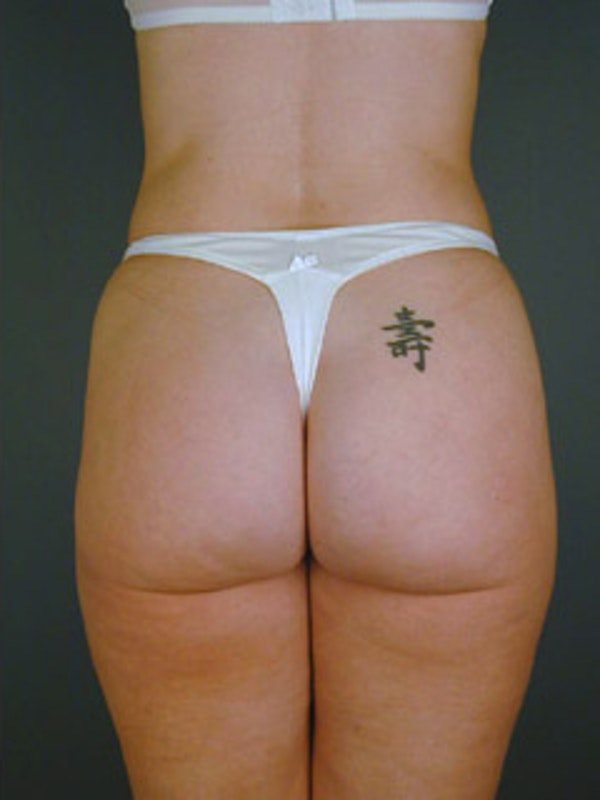 Thighs Gallery - Patient 13900672 - Image 2