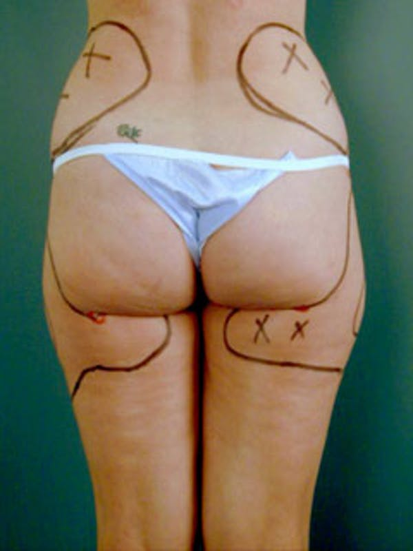 Thighs Gallery - Patient 13900674 - Image 1