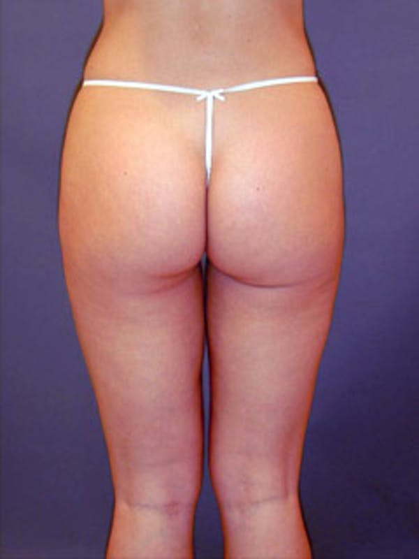 Thighs Gallery - Patient 13900673 - Image 2