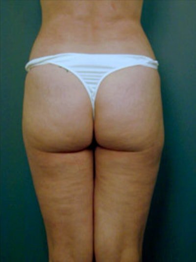 Thighs Gallery - Patient 13900674 - Image 2