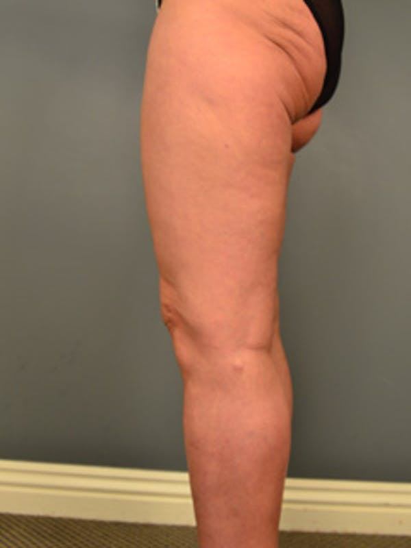 Thighs Gallery - Patient 13900669 - Image 6
