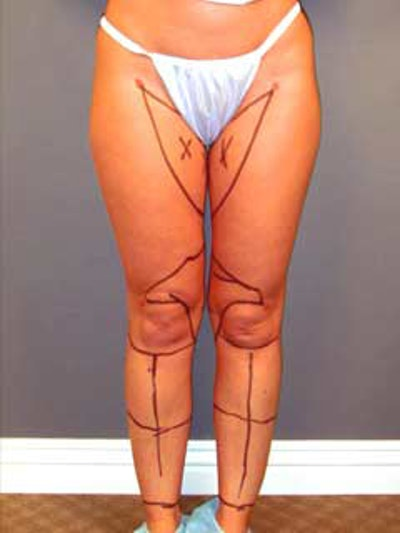 Thighs Gallery - Patient 13900675 - Image 1