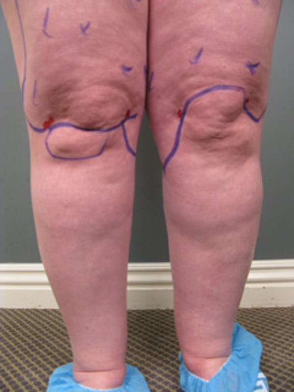 Thighs Gallery - Patient 13900669 - Image 7
