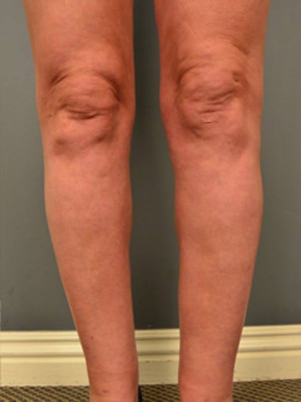 Thighs Gallery - Patient 13900669 - Image 8