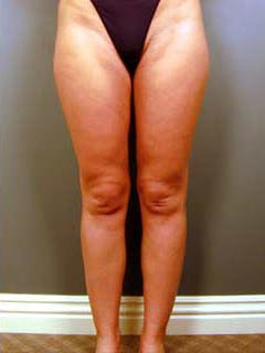 Thighs Gallery - Patient 13900675 - Image 2