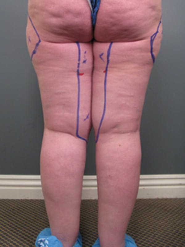Thighs Gallery - Patient 13900669 - Image 9