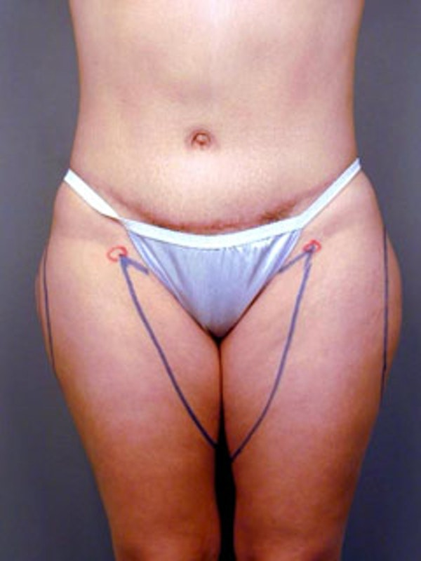 Thighs Gallery - Patient 13900678 - Image 1