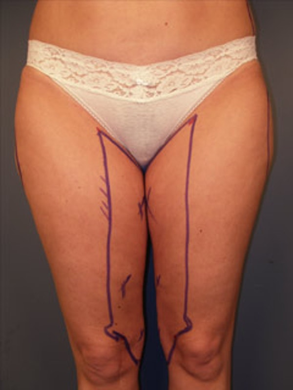 Thighs Gallery - Patient 13900679 - Image 1