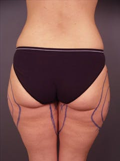 Thighs Gallery - Patient 13900680 - Image 1