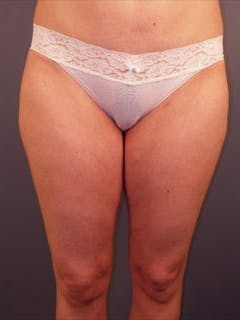 Thighs Gallery - Patient 13900679 - Image 2