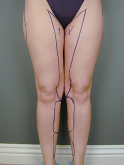 Thighs Gallery - Patient 13900681 - Image 11