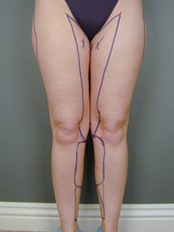 Thighs Gallery - Patient 13900681 - Image 1