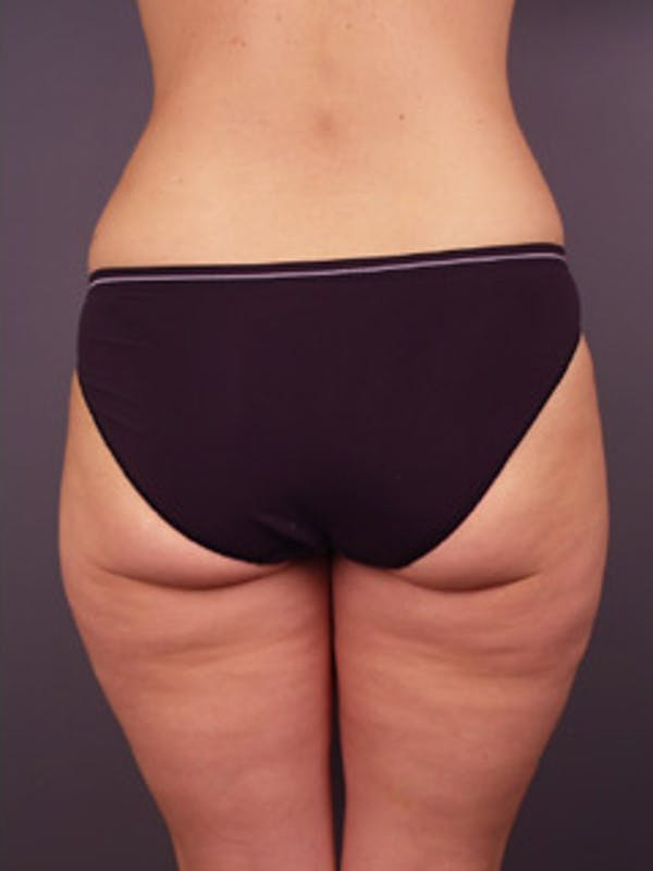 Thighs Gallery - Patient 13900680 - Image 2