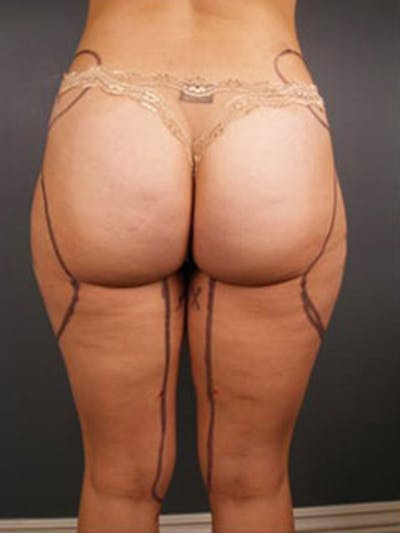 Thighs Gallery - Patient 13900682 - Image 12