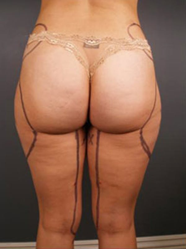 Thighs Gallery - Patient 13900682 - Image 1