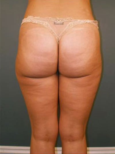 Thighs Gallery - Patient 13900682 - Image 2