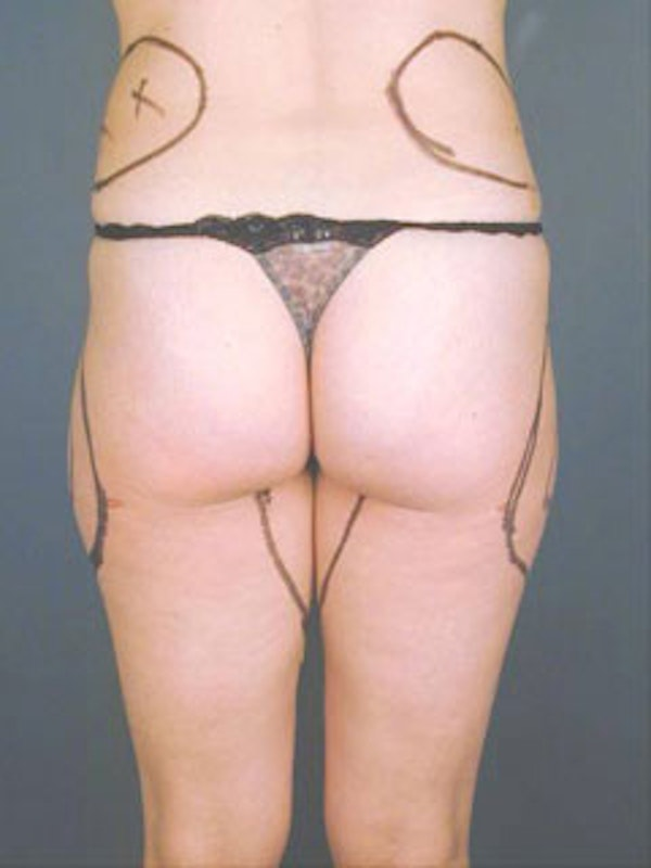 Thighs Gallery - Patient 13900683 - Image 1