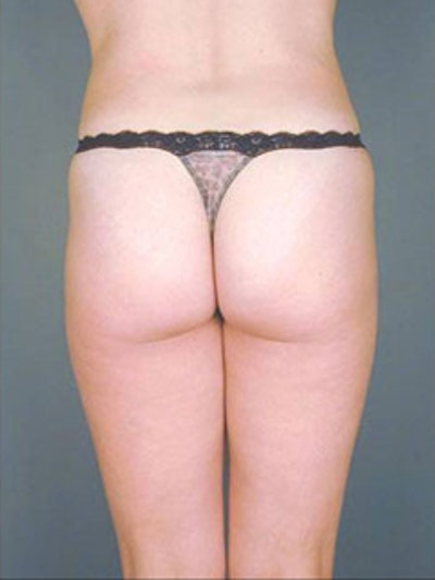 Thighs Gallery - Patient 13900683 - Image 2