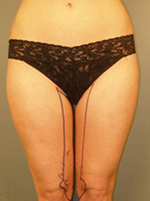 Thighs Gallery - Patient 13900684 - Image 1