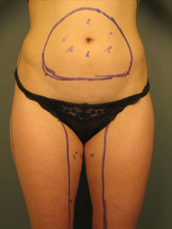 Thighs Gallery - Patient 13900685 - Image 1