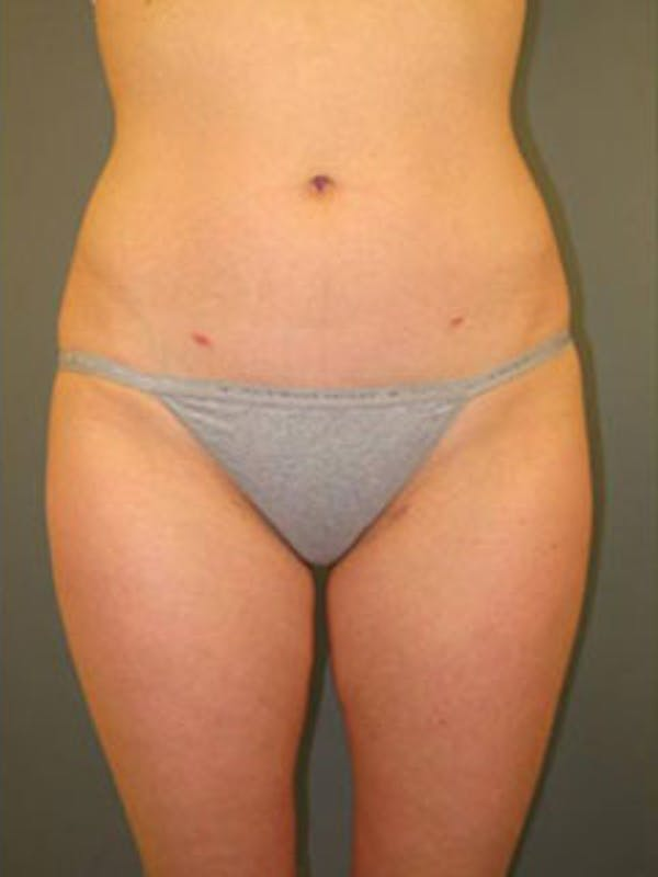 Thighs Gallery - Patient 13900685 - Image 2
