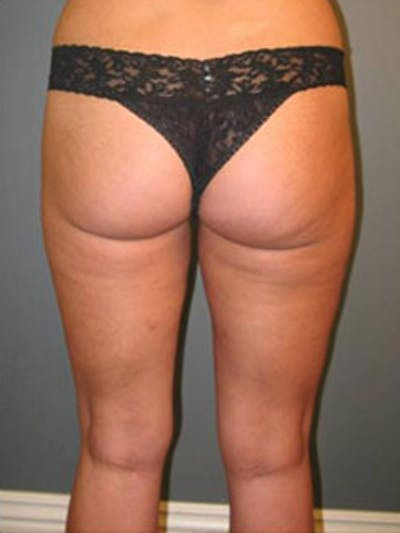 Thighs Gallery - Patient 13900684 - Image 4