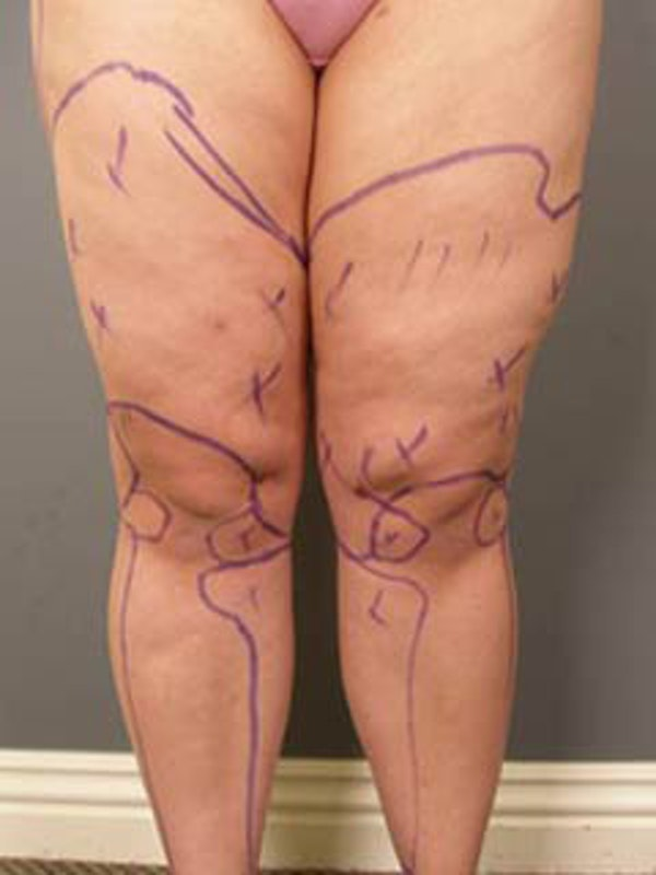 Thighs Gallery - Patient 13900686 - Image 1