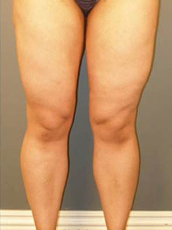 Thighs Gallery - Patient 13900686 - Image 2