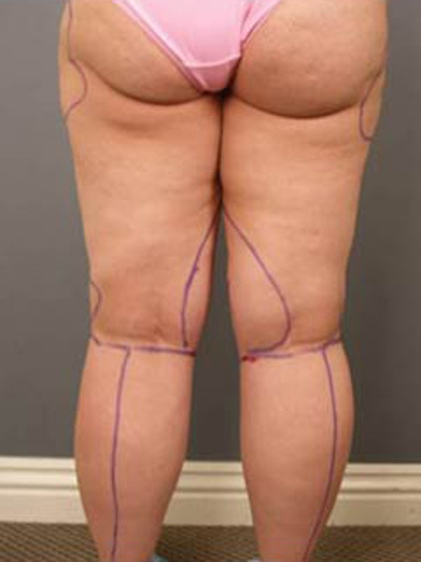 Thighs Gallery - Patient 13900686 - Image 3