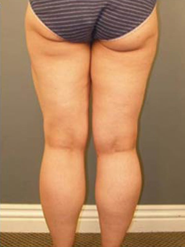 Thighs Gallery - Patient 13900686 - Image 4