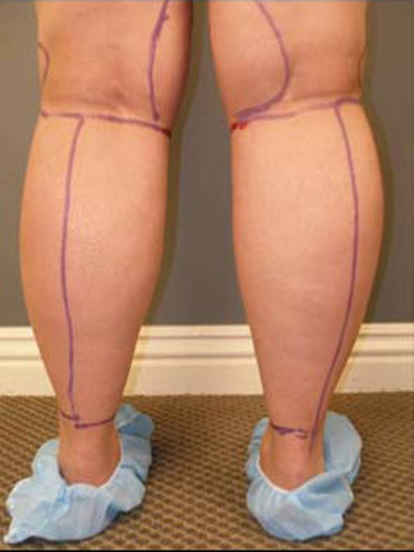 Thighs Gallery - Patient 13900686 - Image 5