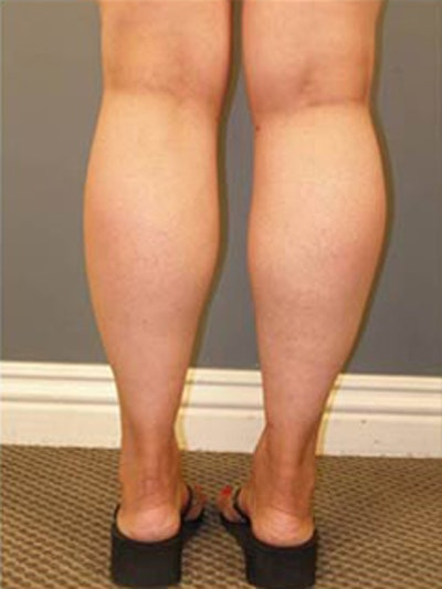 Thighs Gallery - Patient 13900686 - Image 6