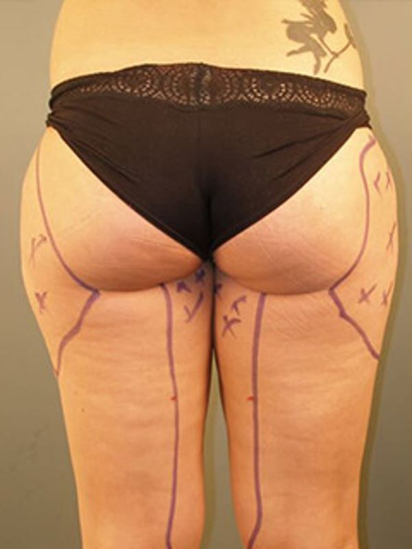 Thighs Gallery - Patient 13900688 - Image 1