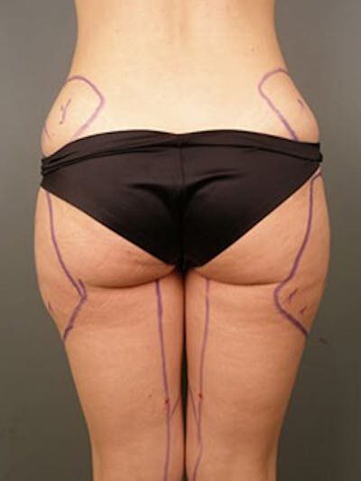 Thighs Gallery - Patient 13900689 - Image 19