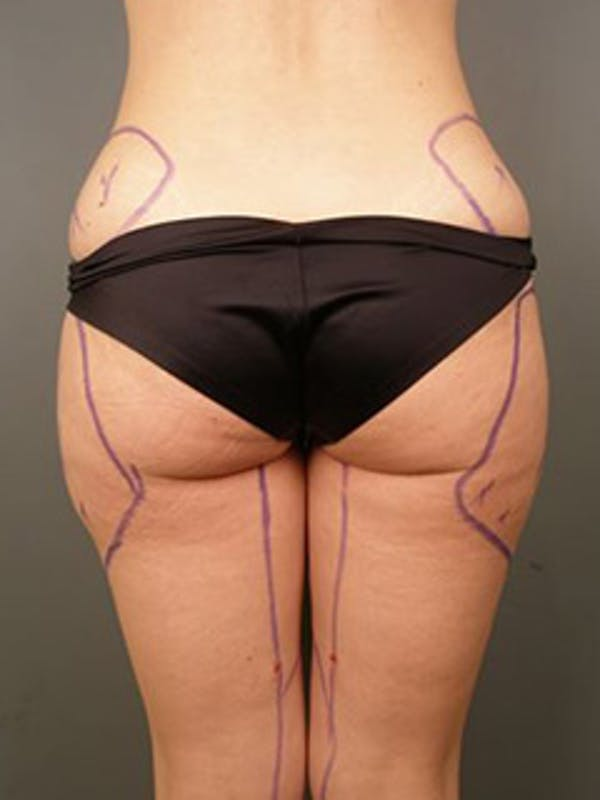 Thighs Gallery - Patient 13900689 - Image 1