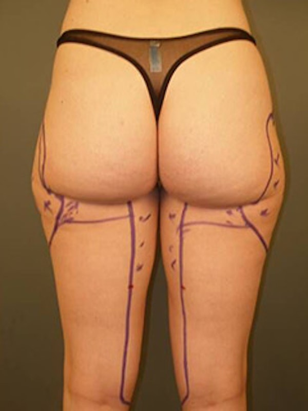 Thighs Gallery - Patient 13900690 - Image 1