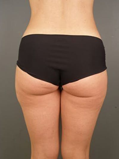 Thighs Gallery - Patient 13900689 - Image 2