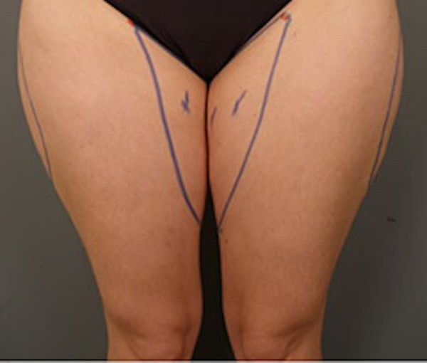 Thighs Gallery - Patient 13900691 - Image 1