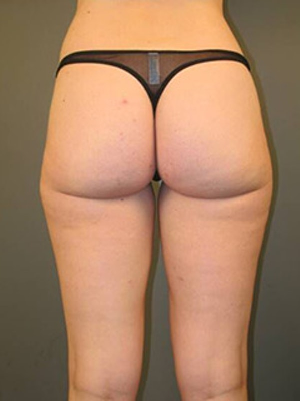 Thighs Gallery - Patient 13900690 - Image 2