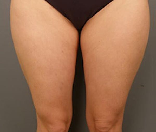 Thighs Gallery - Patient 13900691 - Image 2