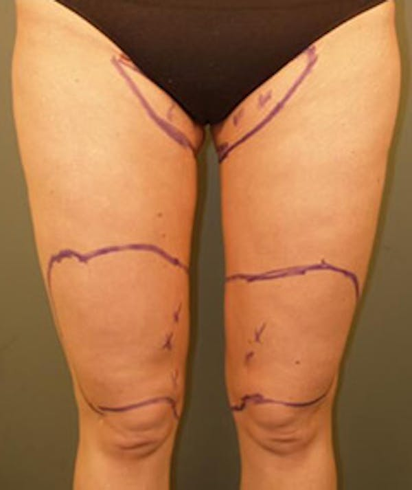 Thighs Gallery - Patient 13900692 - Image 1