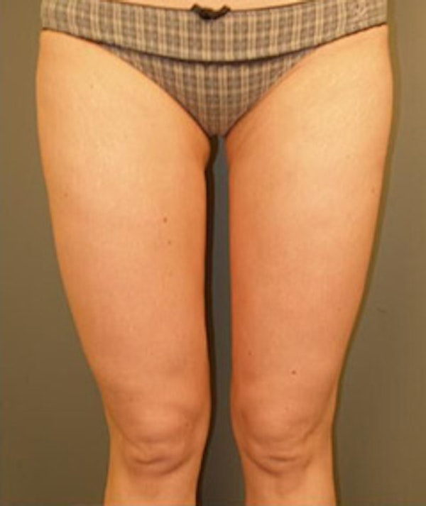 Thighs Gallery - Patient 13900692 - Image 2