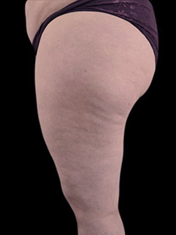 Thighs Gallery - Patient 13900703 - Image 3