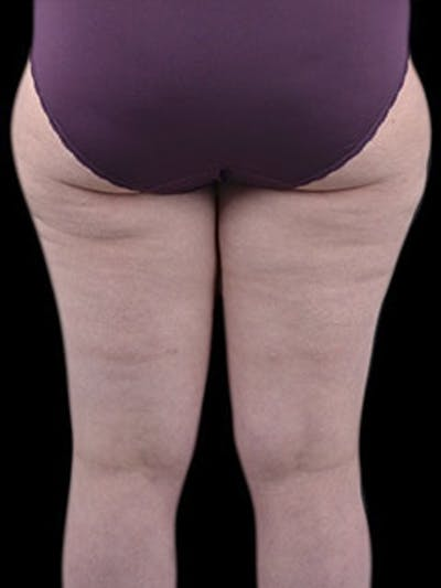 Thighs Gallery - Patient 13900703 - Image 10